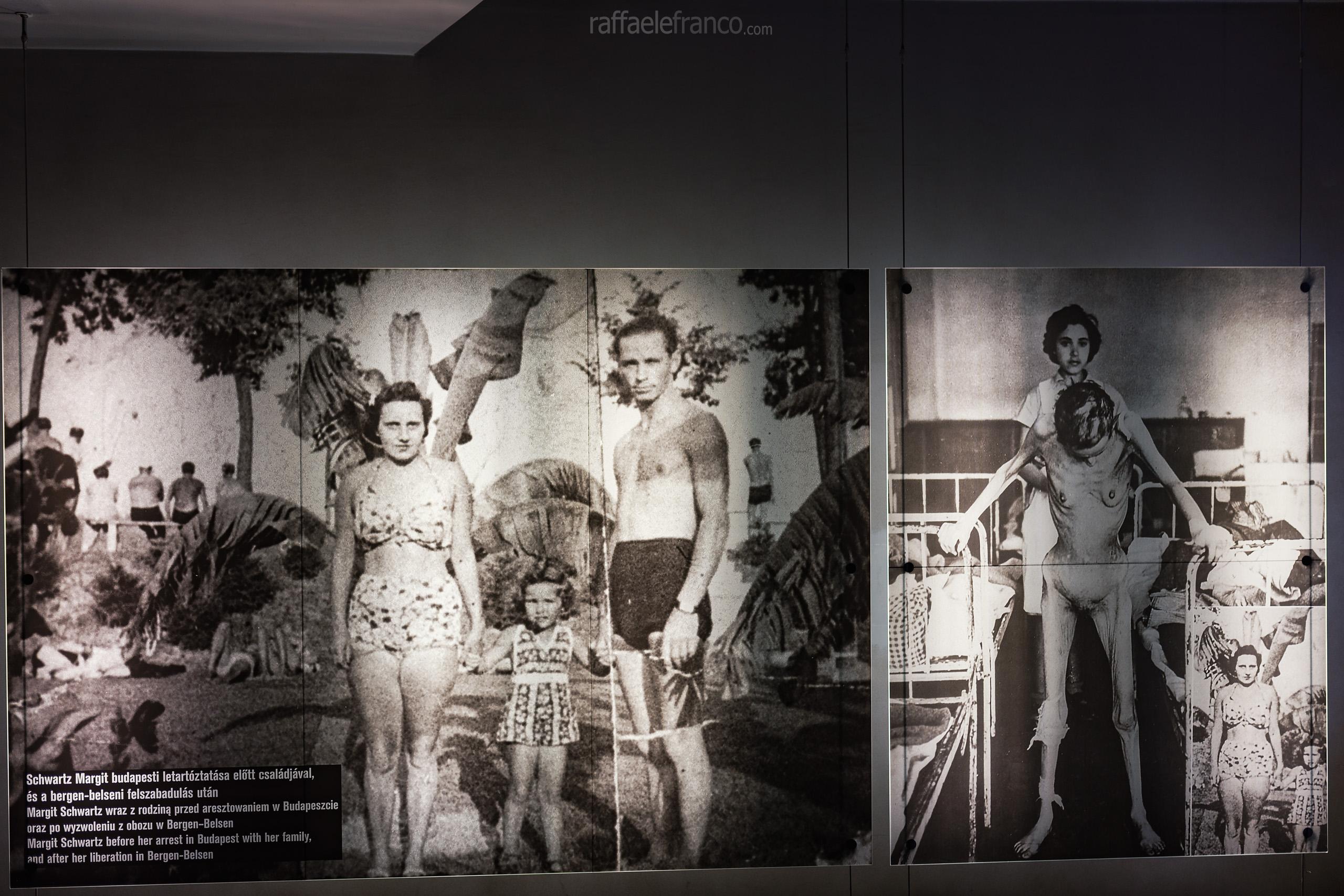 Le condizioni di una prigioniera dei campi di concentramento nazisti